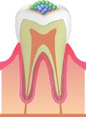 むし歯のメカニズム