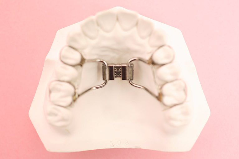 顎拡大装置